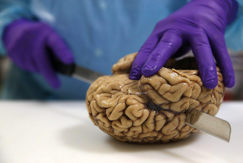TOP 10: didžiausios galvos smegenys