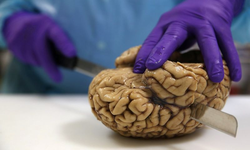 """Nors žmogaus smegenys toli gražu nėra didžiausios gyvūnijos pasaulyje, jose yra daugiausia neuronų. """"REUTERS""""/""""Scanpix"""" nuotr."""