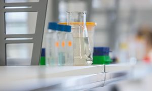 Atlikti koronaviruso testus galbūt galės dar 4 laboratorijos