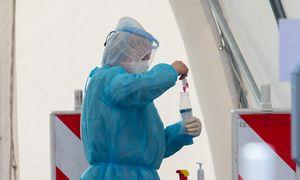 Klaipėdos universitetinės ligoninės laboratorija dėl sugedusios įrangos neatliko tyrimų