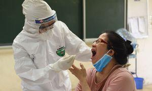 COVID-19 atvejų skaičius pasaulyje perkopė 19 mln., liga nusinešė daugiau nei 714.000 gyvybių