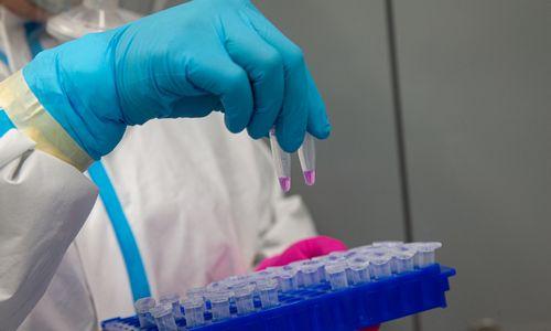 Per parą nustatyta 20 naujų koronaviruso atvejų
