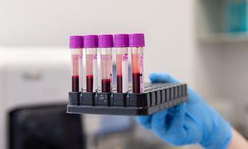 Naujas tyrimas: persirgus COVID-19 antikūnų apsauga trunka neilgai