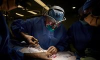JAV medikai žmogui laikinai sėkmingai prijungė kiaulės inkstą